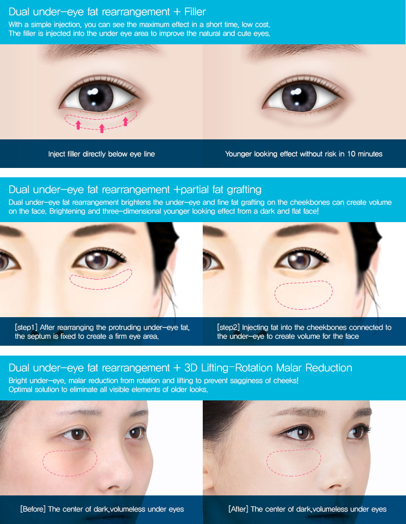 How To Get Rid Of Fat Under Eyes Without Surgery